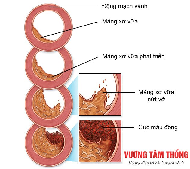 Sự phát triển xơ vữa trong bệnh mạch vành